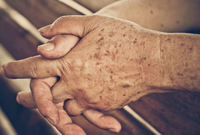 Yaşlılık lekelerine karşı soya fasülyesi kürü